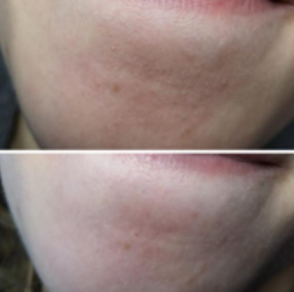After-Verstopte poriën