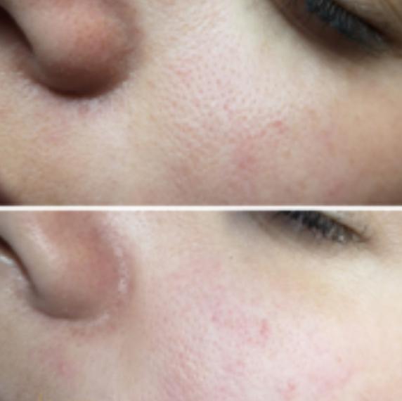 Before-Verstopte poriën
