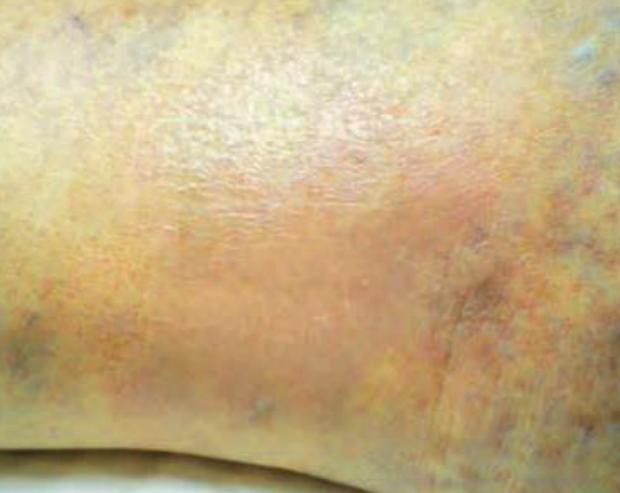 After-Medical B
